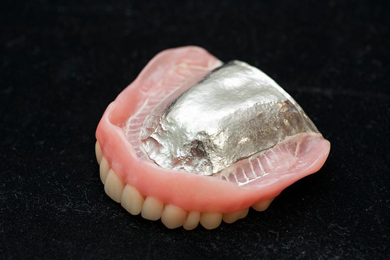 薄い金属を床部分に使った入れ歯
