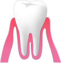 ①健康な歯ぐき