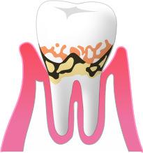 ③軽度の歯周病