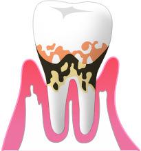 ④中度の歯周病