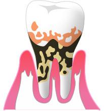⑤重度の歯周病